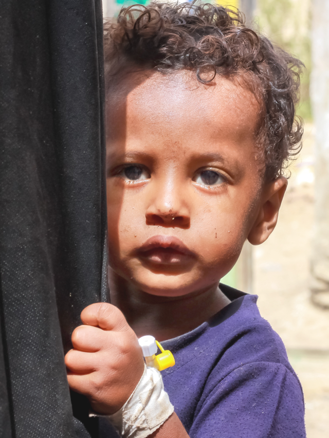 A young child in Yemen needs urgent aid now